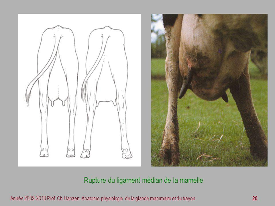 20 Année 2009-2010 Prof. Ch.Hanzen- Anatomo-physiologie de la glande mammaire et du trayon Rupture du ligament médian de la mamelle