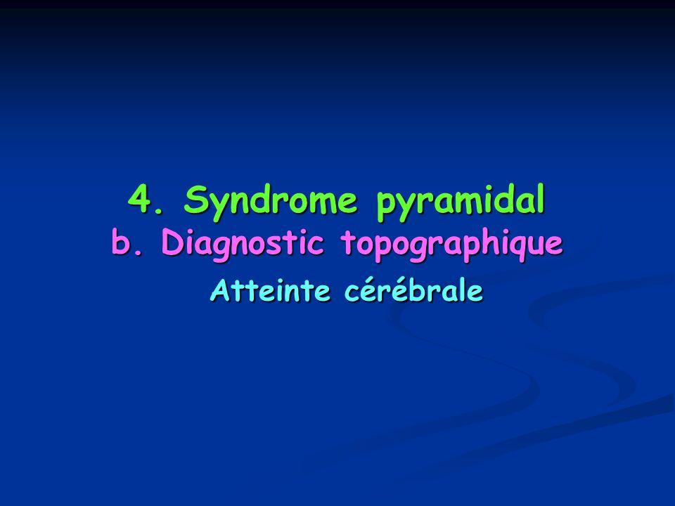 4. Syndrome pyramidal b. Diagnostic topographique Atteinte cérébrale