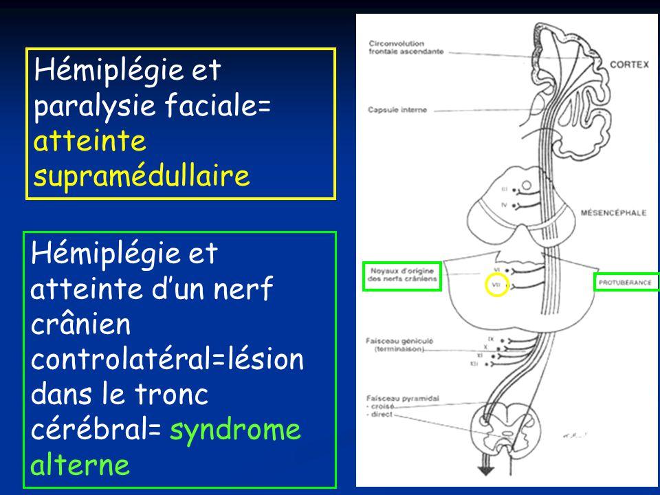 Hémiplégie et atteinte dun nerf crânien controlatéral=lésion dans le tronc cérébral= syndrome alterne Hémiplégie et paralysie faciale= atteinte supram