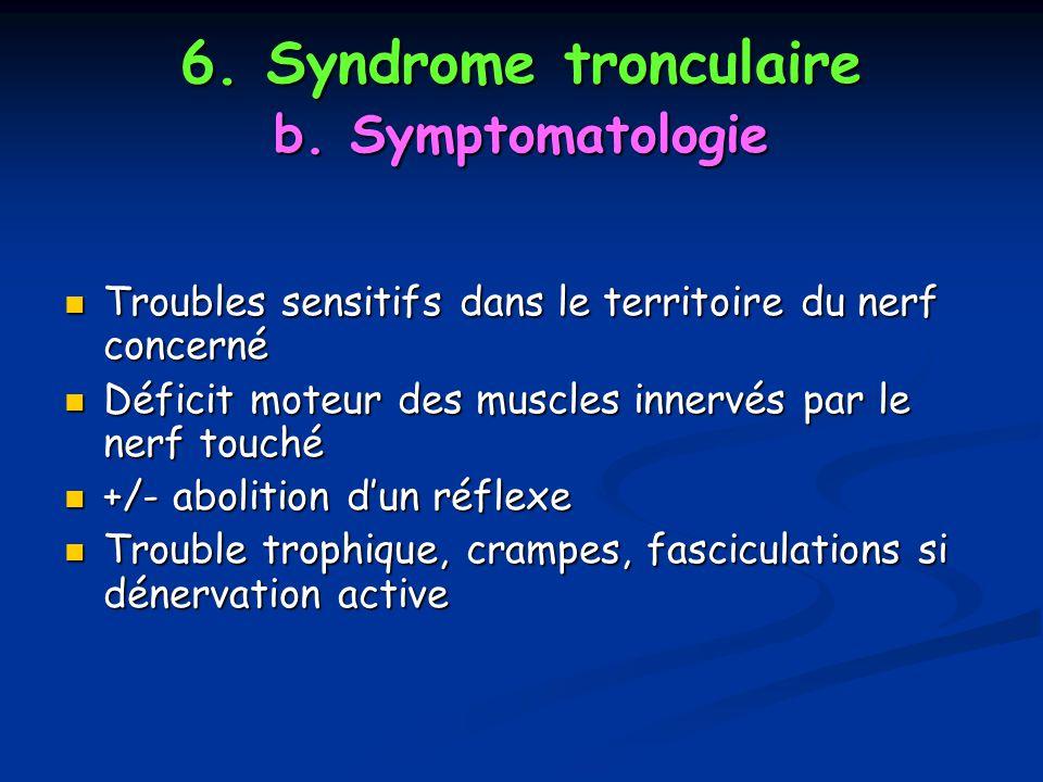 6. Syndrome tronculaire b. Symptomatologie Troubles sensitifs dans le territoire du nerf concerné Troubles sensitifs dans le territoire du nerf concer