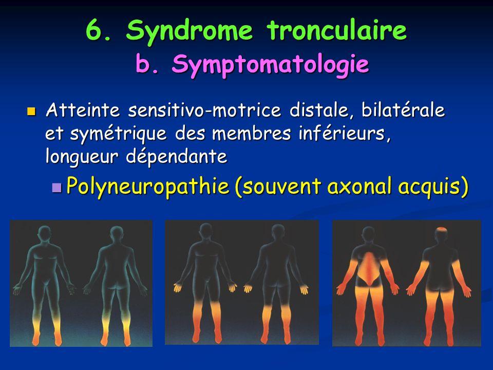 6. Syndrome tronculaire b. Symptomatologie Atteinte sensitivo-motrice distale, bilatérale et symétrique des membres inférieurs, longueur dépendante At