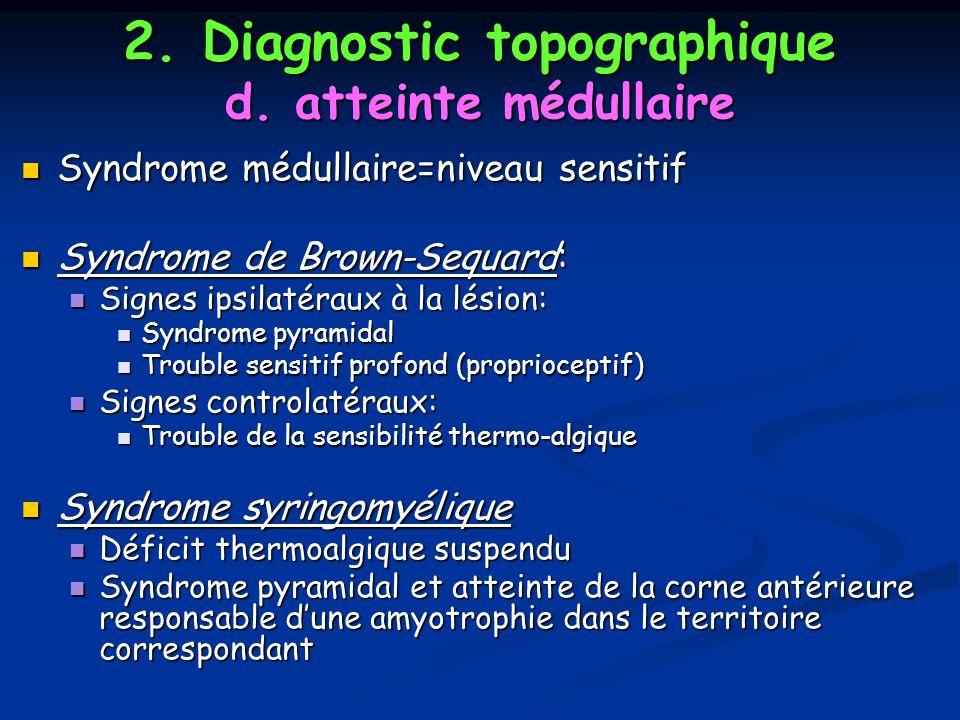 Syndrome médullaire=niveau sensitif Syndrome médullaire=niveau sensitif Syndrome de Brown-Sequard: Syndrome de Brown-Sequard: Signes ipsilatéraux à la