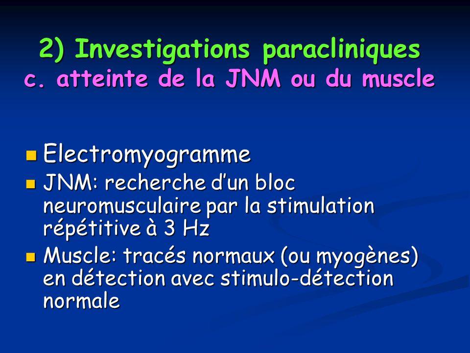 2) Investigations paracliniques c. atteinte de la JNM ou du muscle Electromyogramme Electromyogramme JNM: recherche dun bloc neuromusculaire par la st