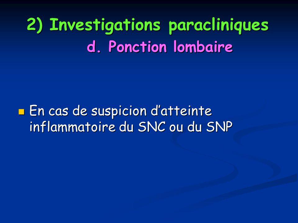 2) Investigations paracliniques d. Ponction lombaire En cas de suspicion datteinte inflammatoire du SNC ou du SNP En cas de suspicion datteinte inflam
