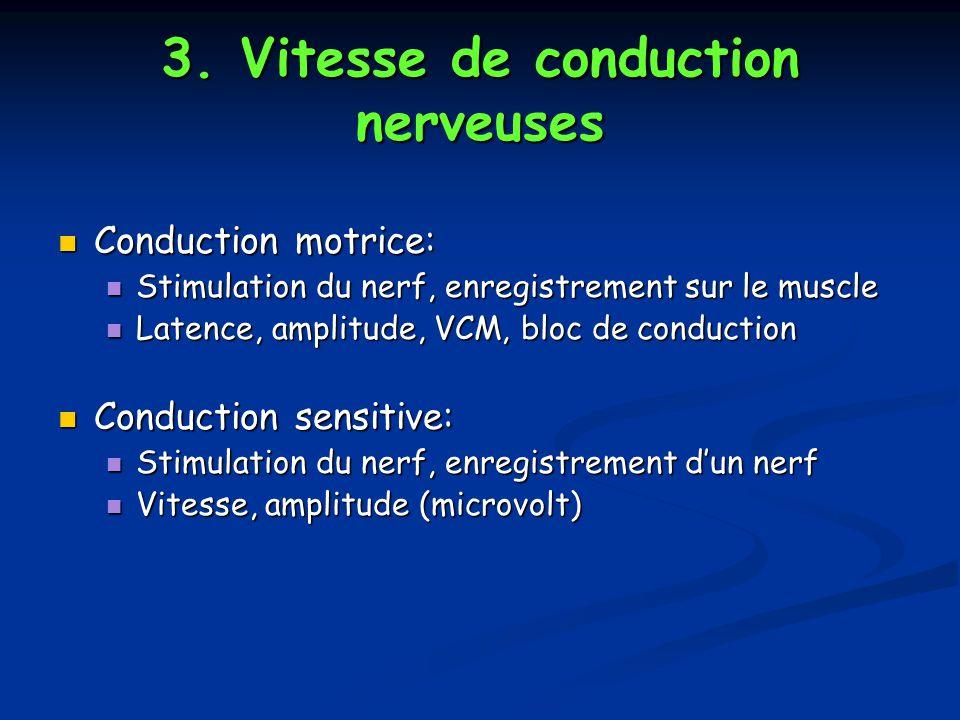 3. Vitesse de conduction nerveuses Conduction motrice: Conduction motrice: Stimulation du nerf, enregistrement sur le muscle Stimulation du nerf, enre