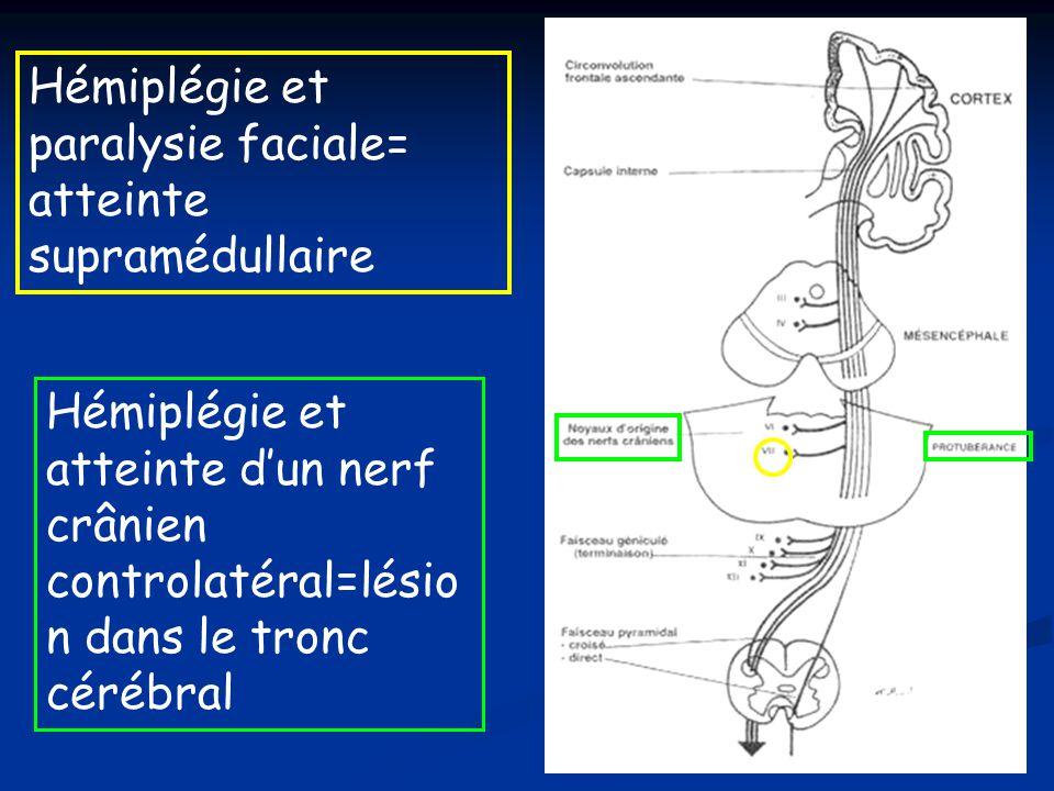 Hémiplégie et paralysie faciale= atteinte supramédullaire Hémiplégie et atteinte dun nerf crânien controlatéral=lésio n dans le tronc cérébral