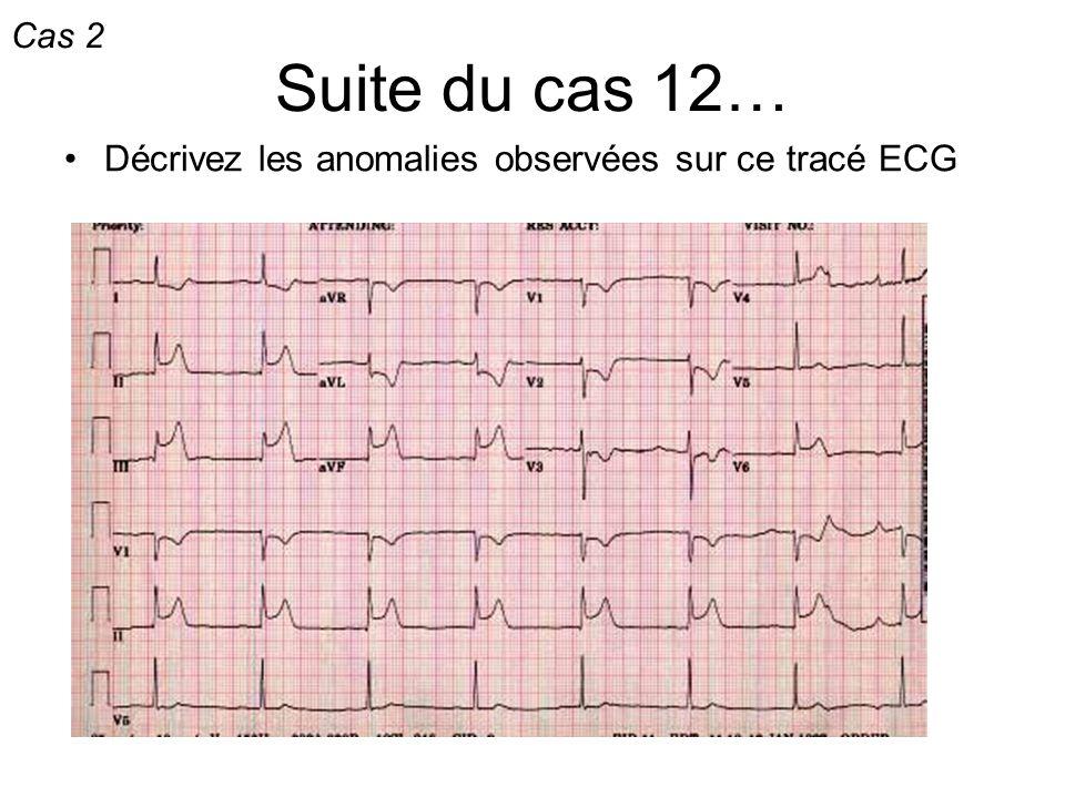 Suite du cas 12… Décrivez les anomalies observées sur ce tracé ECG Cas 2