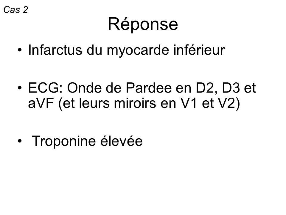 Réponse Infarctus du myocarde inférieur ECG: Onde de Pardee en D2, D3 et aVF (et leurs miroirs en V1 et V2) Troponine élevée Cas 2