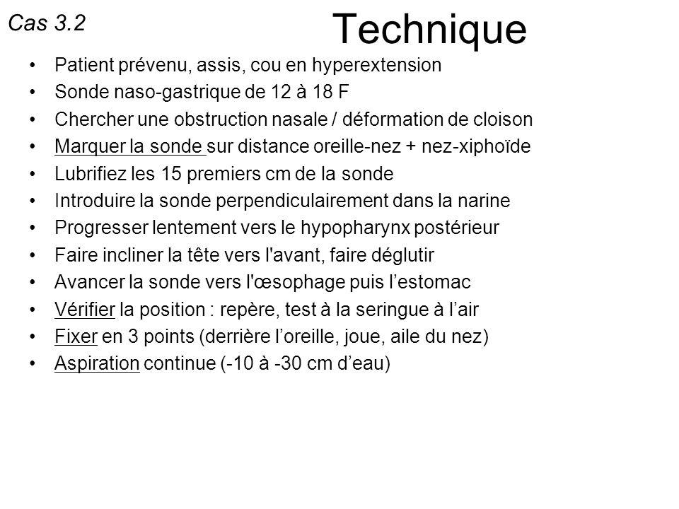 Technique Patient prévenu, assis, cou en hyperextension Sonde naso-gastrique de 12 à 18 F Chercher une obstruction nasale / déformation de cloison Mar