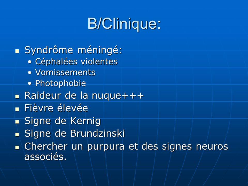 B/Clinique: Syndrôme méningé: Syndrôme méningé: Céphalées violentesCéphalées violentes VomissementsVomissements PhotophobiePhotophobie Raideur de la n