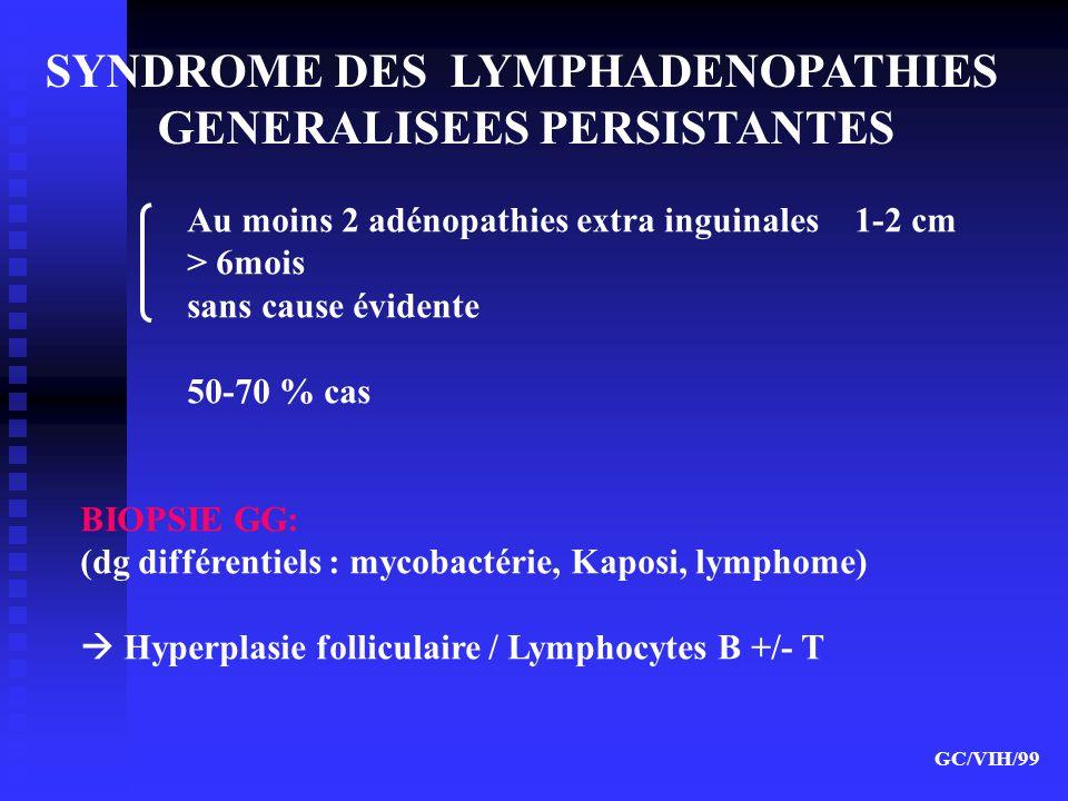 SYNDROME DES LYMPHADENOPATHIES GENERALISEES PERSISTANTES Au moins 2 adénopathies extra inguinales 1-2 cm > 6mois sans cause évidente 50-70 % cas BIOPS