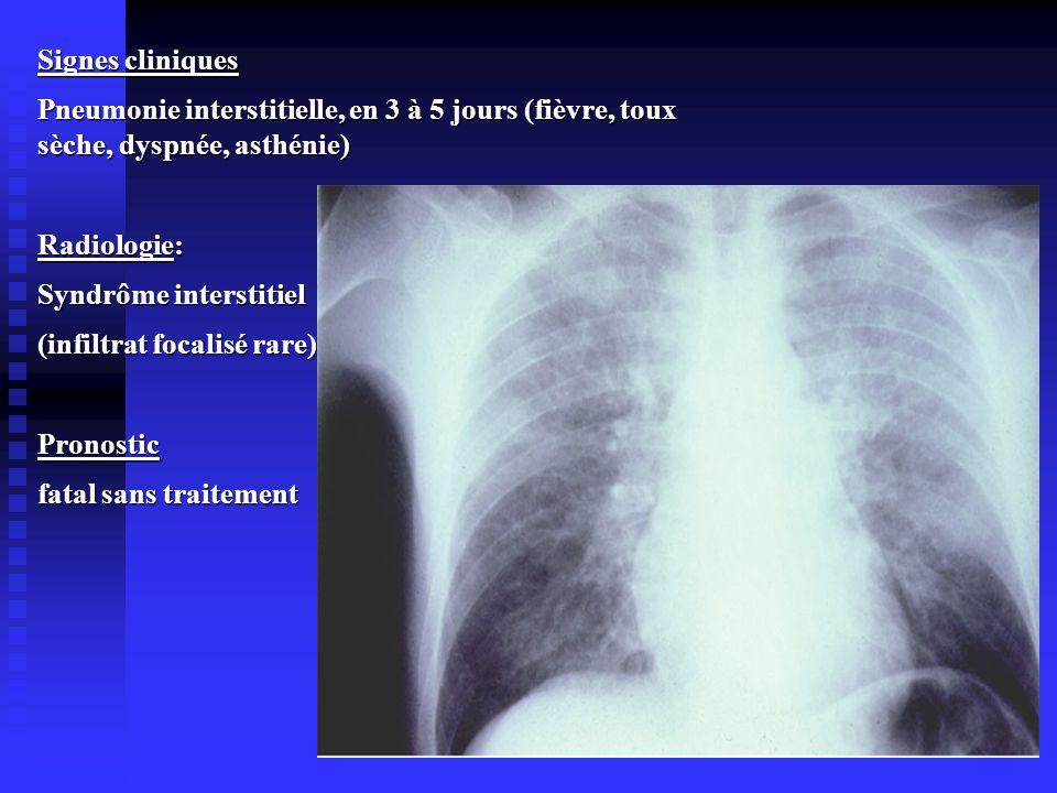 Signes cliniques Pneumonie interstitielle, en 3 à 5 jours (fièvre, toux sèche, dyspnée, asthénie) Radiologie: Syndrôme interstitiel (infiltrat focalis