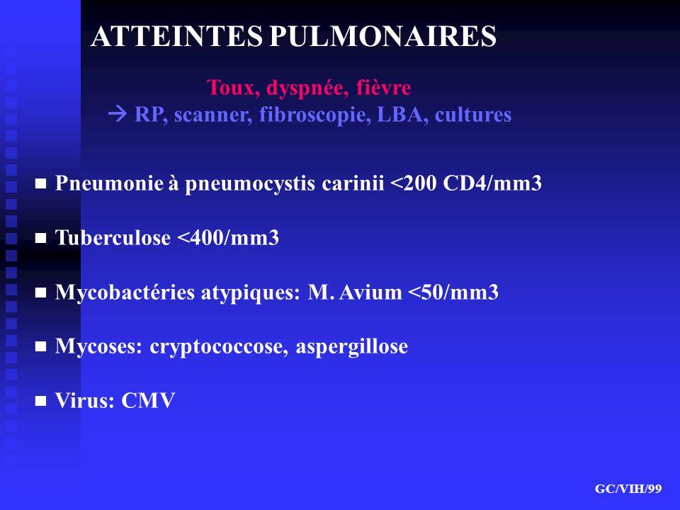 ATTEINTES PULMONAIRES Pneumonie à pneumocystis carinii <200 CD4/mm3 Tuberculose <400/mm3 Mycobactéries atypiques: M. Avium <50/mm3 Mycoses: cryptococc