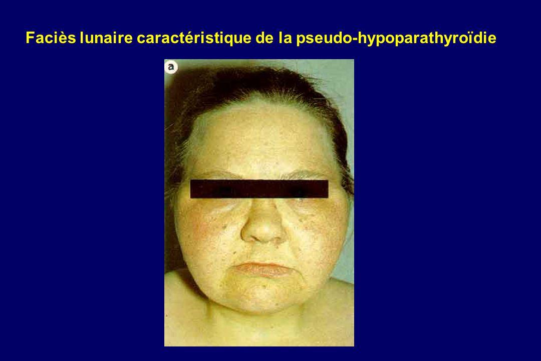 Faciès lunaire caractéristique de la pseudo-hypoparathyroïdie