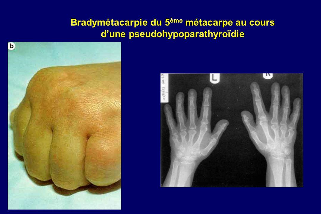Bradymétacarpie du 5 ème métacarpe au cours dune pseudohypoparathyroïdie