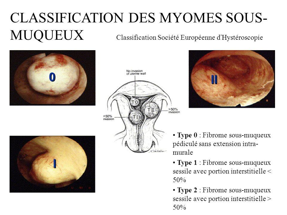 CLASSIFICATION DES MYOMES SOUS- MUQUEUX Classification Société Européenne d Hystéroscopie Type 0 : Fibrome sous-muqueux pédiculé sans extension intra-