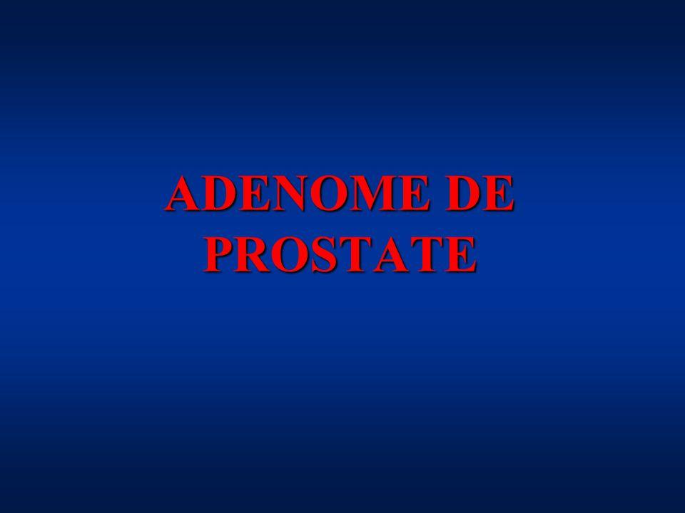 A quoi sert une prostate.