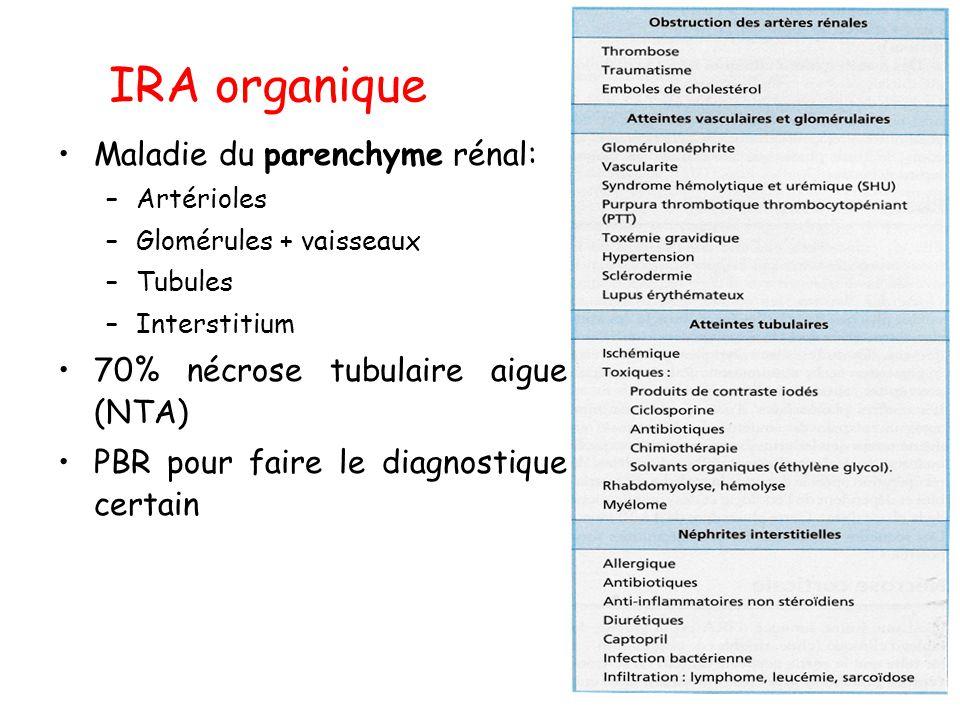 IRA organique Maladie du parenchyme rénal: –Artérioles –Glomérules + vaisseaux –Tubules –Interstitium 70% nécrose tubulaire aigue (NTA) PBR pour faire