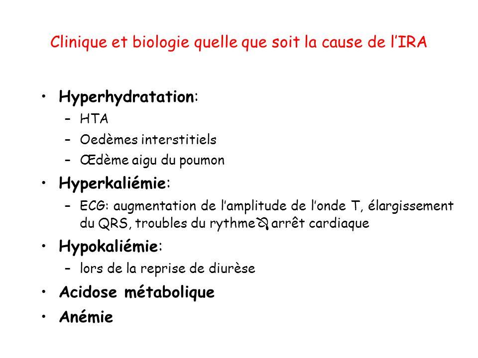Clinique et biologie quelle que soit la cause de lIRA Hyperhydratation: –HTA –Oedèmes interstitiels –Œdème aigu du poumon Hyperkaliémie: –ECG: augment