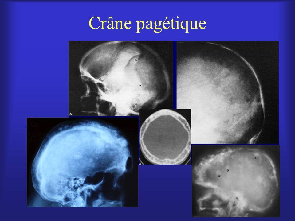 Crâne pagétique