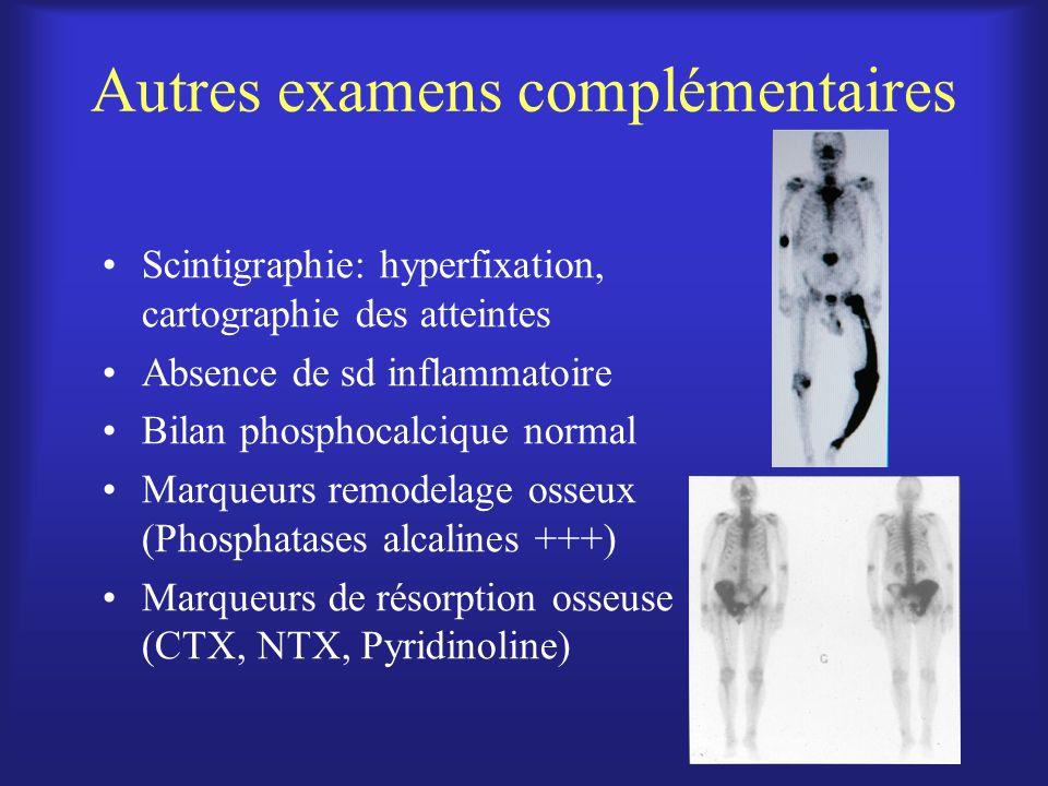 Autres examens complémentaires Scintigraphie: hyperfixation, cartographie des atteintes Absence de sd inflammatoire Bilan phosphocalcique normal Marqu