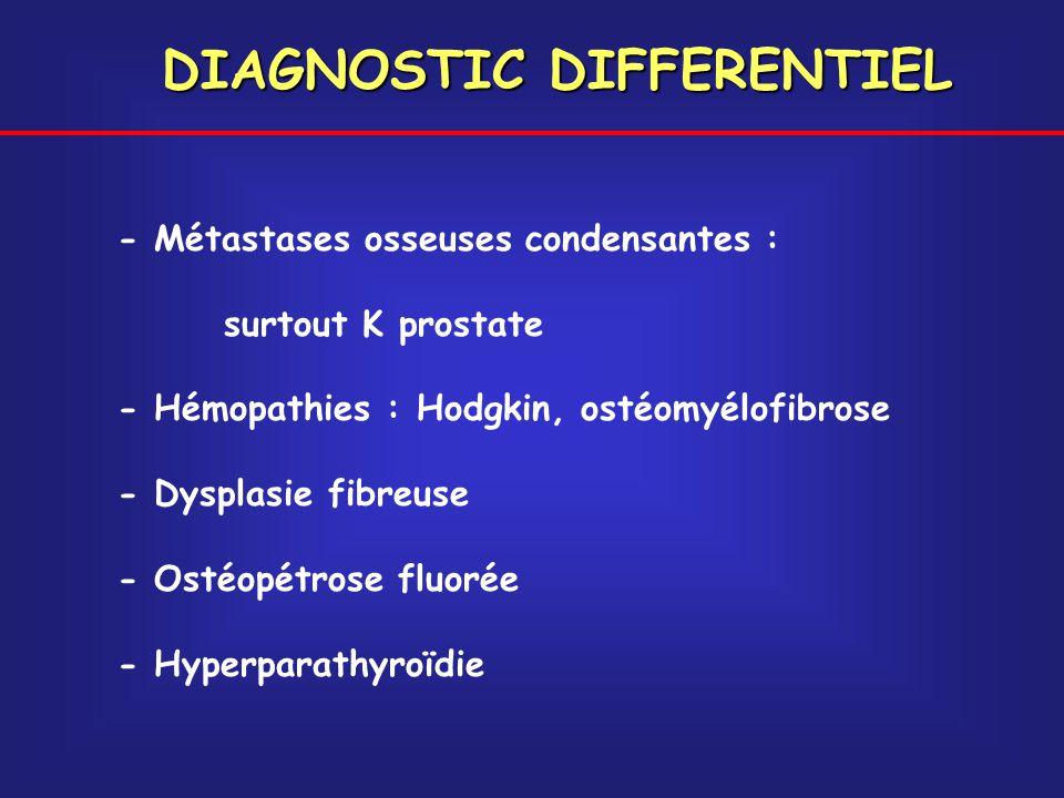 DIAGNOSTIC DIFFERENTIEL - Métastases osseuses condensantes : surtout K prostate - Hémopathies : Hodgkin, ostéomyélofibrose - Dysplasie fibreuse - Osté