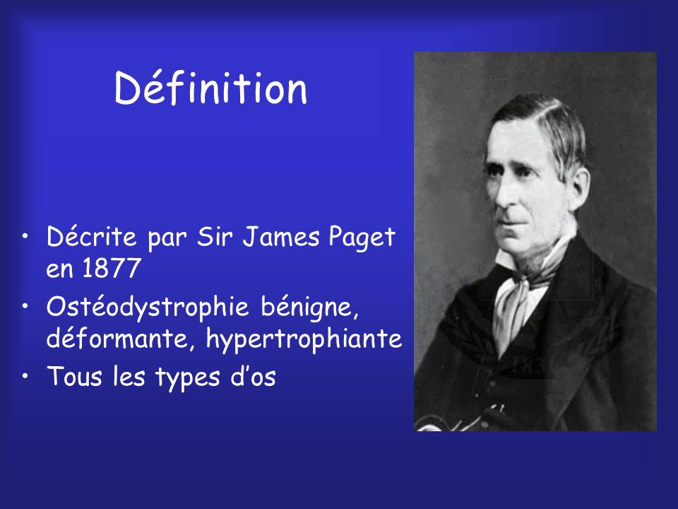 Définition Décrite par Sir James Paget en 1877 Ostéodystrophie bénigne, déformante, hypertrophiante Tous les types dos