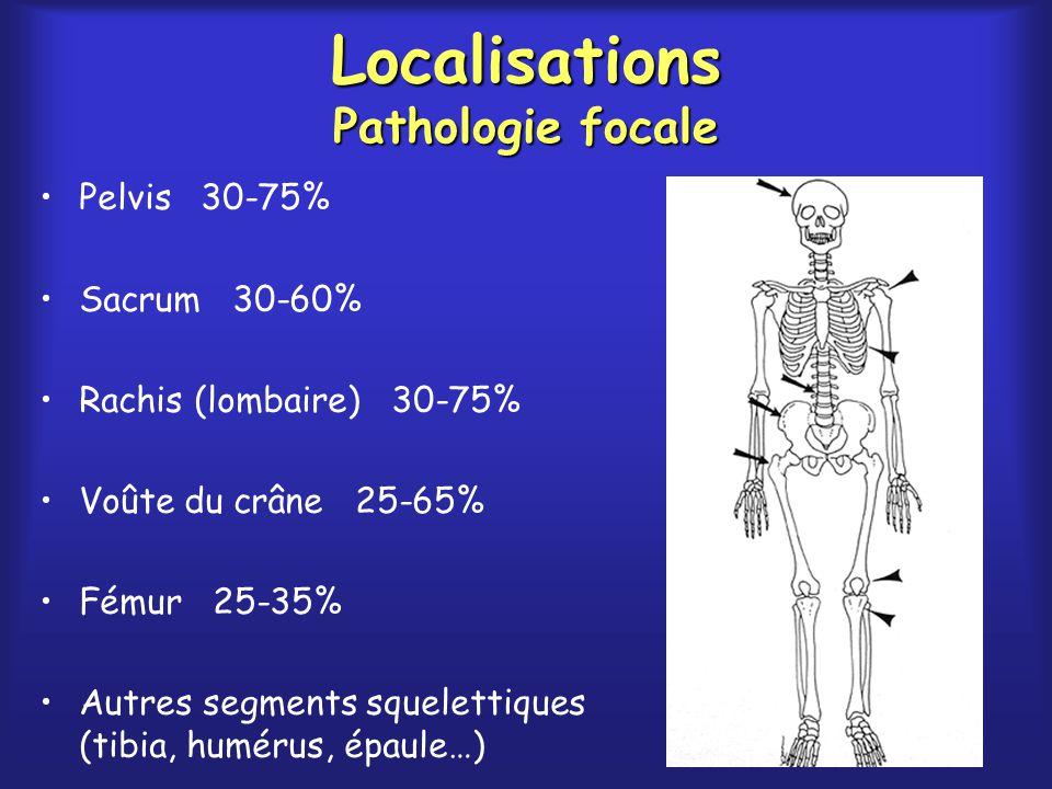 Localisations Pathologie focale Pelvis 30-75% Sacrum 30-60% Rachis (lombaire) 30-75% Voûte du crâne 25-65% Fémur 25-35% Autres segments squelettiques