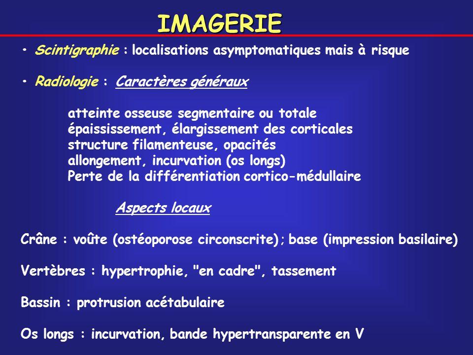 IMAGERIE Scintigraphie : localisations asymptomatiques mais à risque Radiologie :Caractères généraux atteinte osseuse segmentaire ou totale épaississe