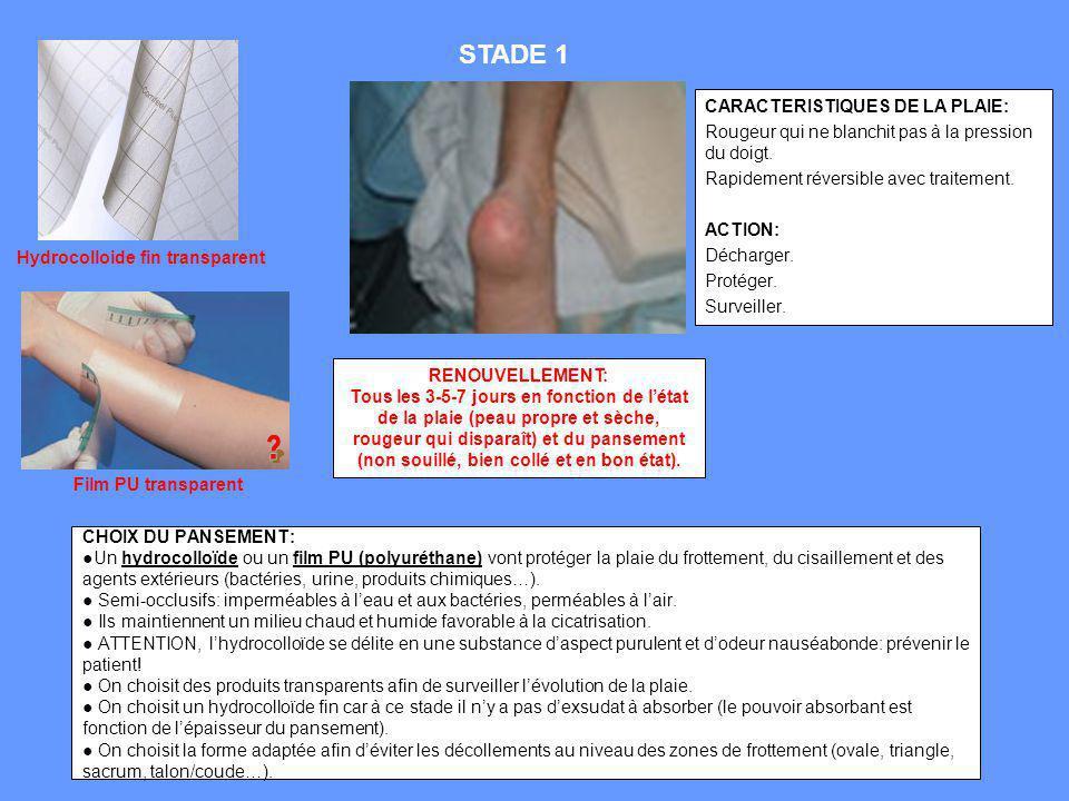 CHOIX DU PANSEMENT:Un hydrocolloïde ou un film PU (polyuréthane) vont protéger la plaie du frottement, du cisaillement et des agents extérieurs (bacté
