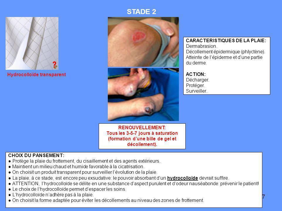 7 CARACTERISTIQUES DE LA PLAIE: Dermabrasion. Décollement épidermique (phlyctène). Atteinte de lépiderme et dune partie du derme. ACTION: Décharger. P