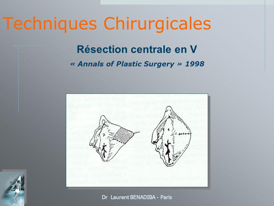 Dr Laurent BENADIBA - Paris Techniques Chirurgicales Résection centrale en V « Annals of Plastic Surgery » 1998