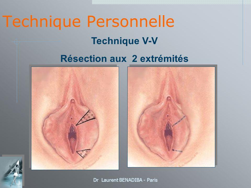 Dr Laurent BENADIBA - Paris Technique Personnelle Technique V-V Résection aux 2 extrémités