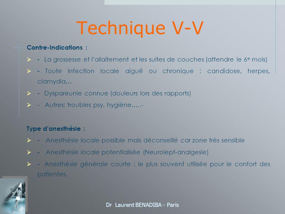 Dr Laurent BENADIBA - Paris Technique V-V Contre-Indications : - La grossesse et lallaitement et les suites de couches (attendre le 6 e mois) - Toute infection locale aiguë ou chronique : candidose, herpes, clamydia… - Dyspareunie connue (douleurs lors des rapports) - Autres: troubles psy, hygiène…..- Type d anesthésie : - Anesthésie locale possible mais déconseillé car zone très sensible - Anesthésie locale potentialisée (Neurolept-analgesie) - Anesthésie générale courte : le plus souvent utilisée pour le confort des patientes.