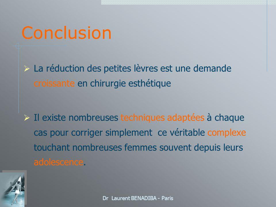 Dr Laurent BENADIBA - Paris Conclusion La réduction des petites lèvres est une demande croissante en chirurgie esthétique Il existe nombreuses techniques adaptées à chaque cas pour corriger simplement ce véritable complexe touchant nombreuses femmes souvent depuis leurs adolescence.