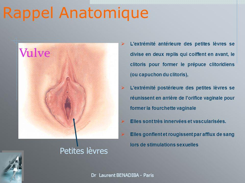 Dr Laurent BENADIBA - Paris Techniques Chirurgicales Résection centrale en V 1 mois