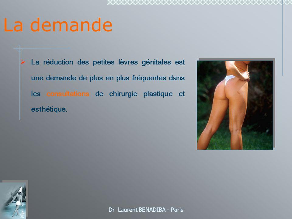 Dr Laurent BENADIBA - Paris La demande La réduction des petites lèvres génitales est une demande de plus en plus fréquentes dans les consultations de chirurgie plastique et esthétique.
