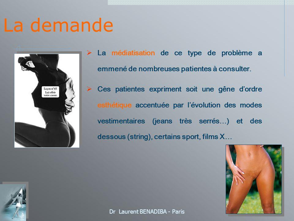 Dr Laurent BENADIBA - Paris Techniques Chirurgicales Résection centrale en V