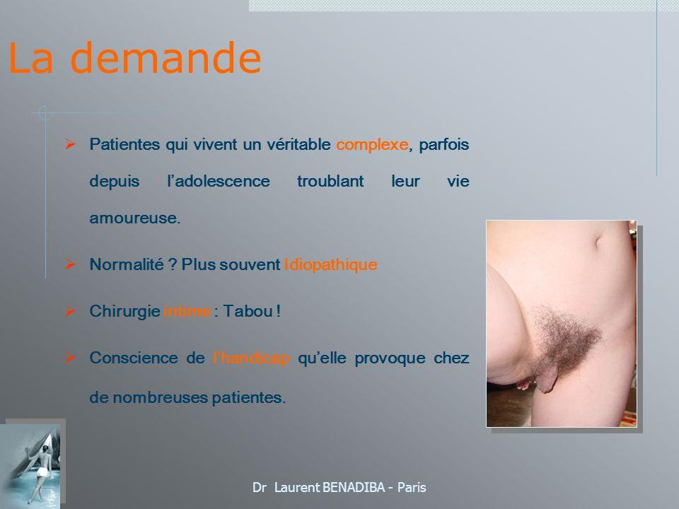 Dr Laurent BENADIBA - Paris La demande Cette intervention est fréquente en extreme- orient ou de nombreuses techniques sont utilisées.