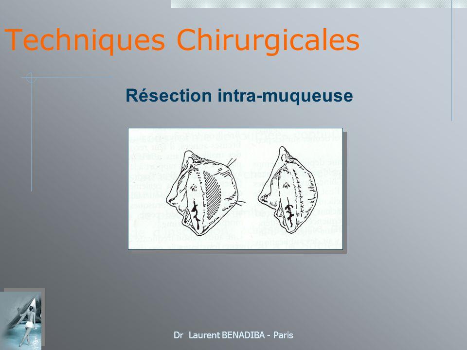 Dr Laurent BENADIBA - Paris Techniques Chirurgicales Résection cutanéo-muqueuse postérieure (EMC: Pr PANIEL)