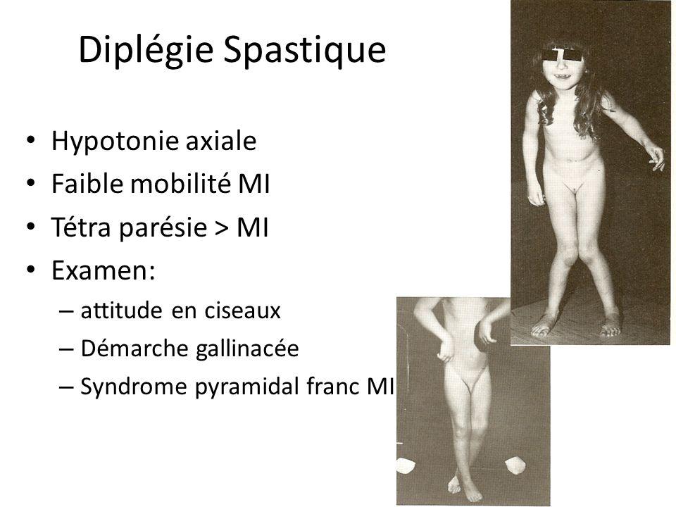 Diplégie Spastique Hypotonie axiale Faible mobilité MI Tétra parésie > MI Examen: – attitude en ciseaux – Démarche gallinacée – Syndrome pyramidal fra