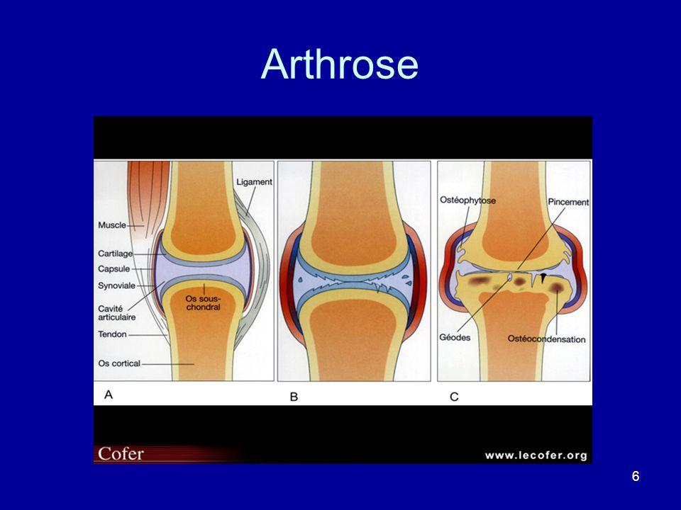 6 Arthrose