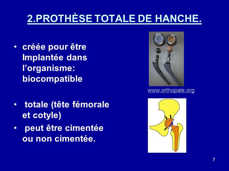 7 2.PROTHÈSE TOTALE DE HANCHE.
