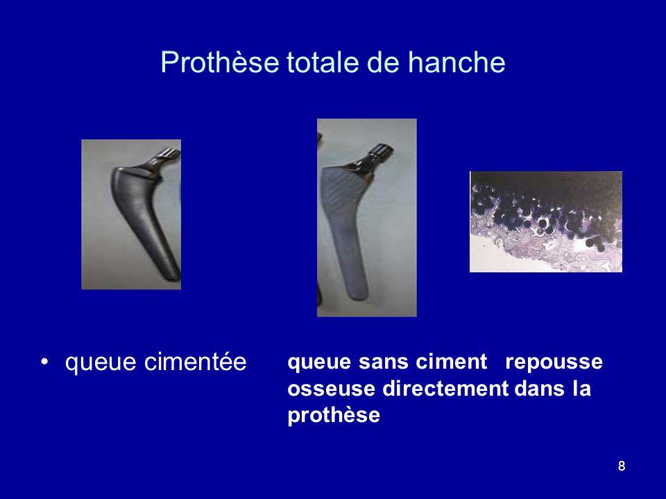 8 Prothèse totale de hanche queue cimentée queue sans ciment repousse osseuse directement dans la prothèse