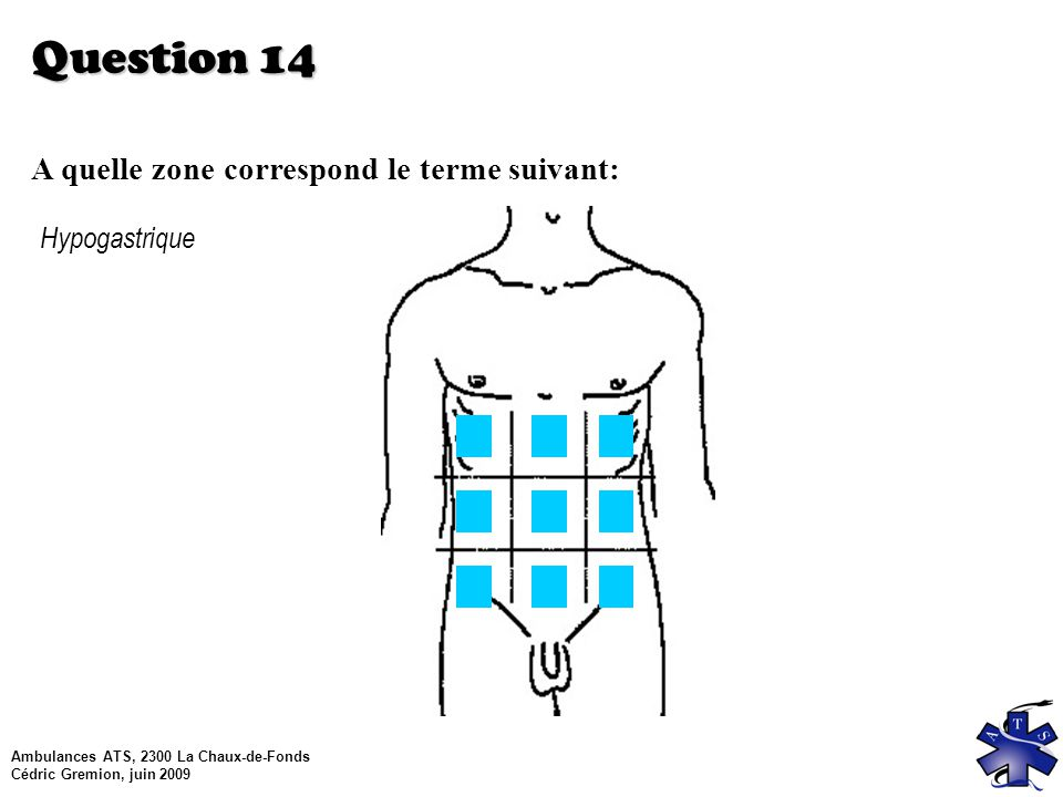 Ambulances ATS, 2300 La Chaux-de-Fonds Cédric Gremion, juin 2009 Question 14 A quelle zone correspond le terme suivant: Hypogastrique