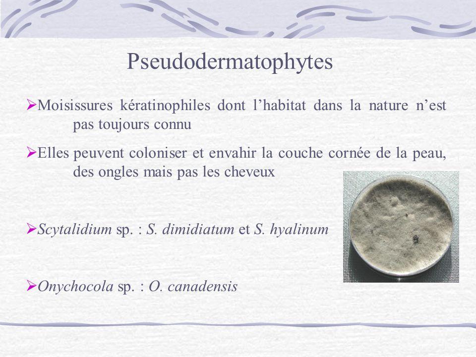 Pseudodermatophytes Moisissures kératinophiles dont lhabitat dans la nature nest pas toujours connu Elles peuvent coloniser et envahir la couche corné