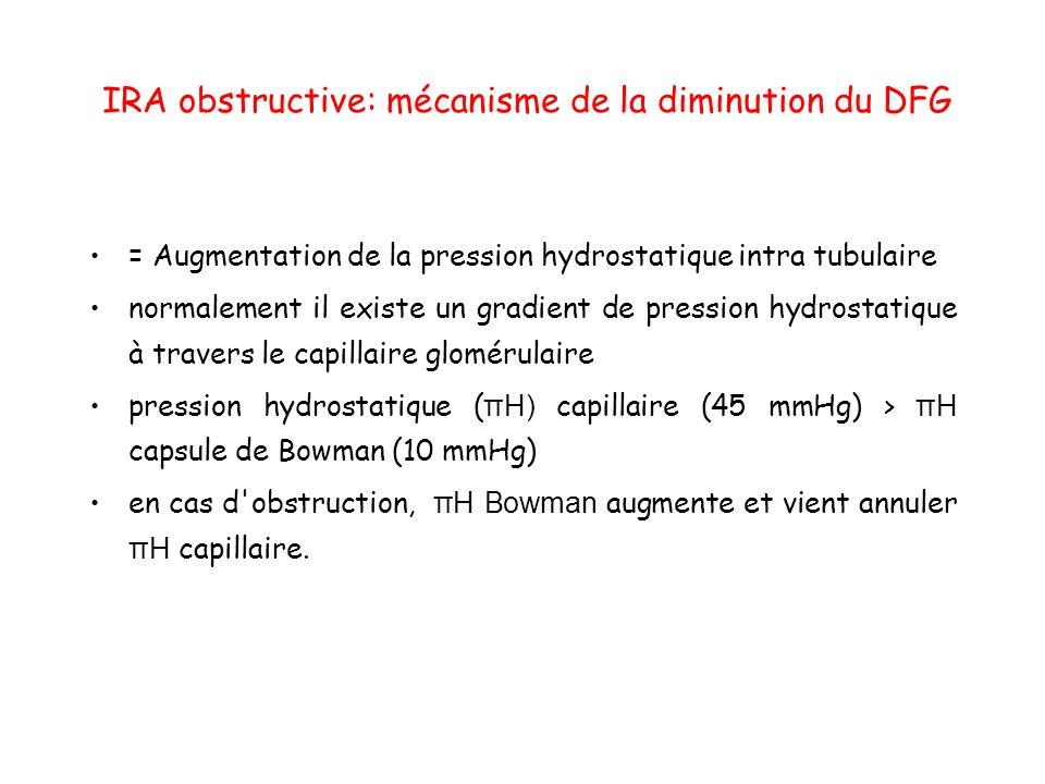 IRA obstructive: mécanisme de la diminution du DFG = Augmentation de la pression hydrostatique intra tubulaire normalement il existe un gradient de pression hydrostatique à travers le capillaire glomérulaire pression hydrostatique ( πH) capillaire (45 mmHg) > πH capsule de Bowman (10 mmHg) en cas d obstruction, πH Bowman augmente et vient annuler πH capillaire.