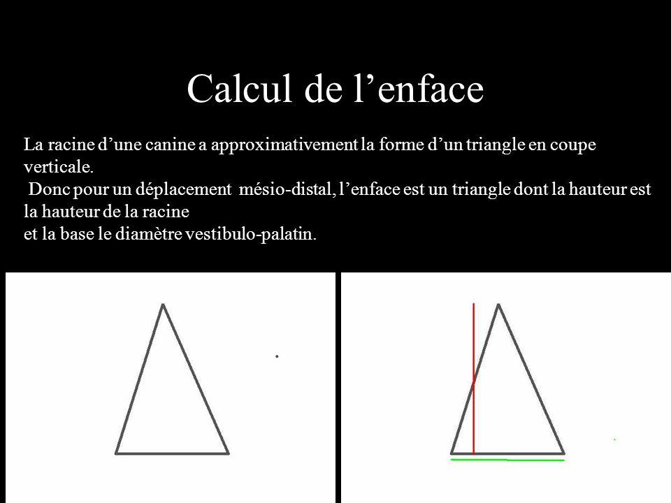 Calcul de lenface La racine dune canine a approximativement la forme dun triangle en coupe verticale.