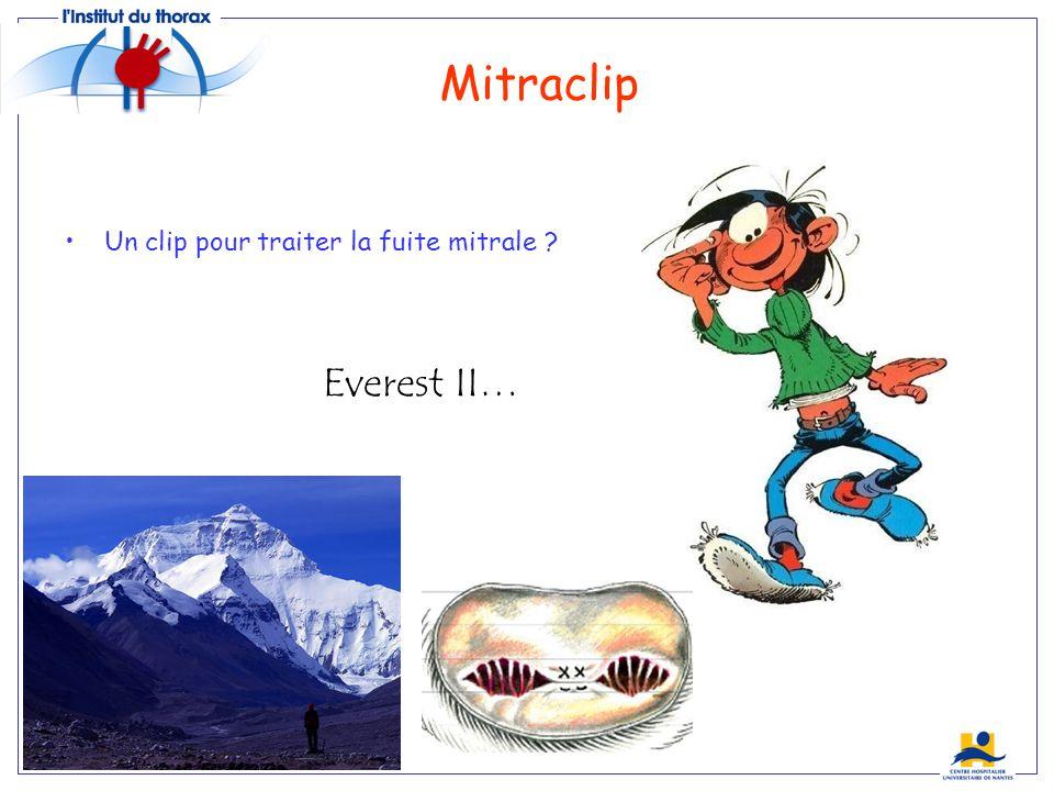 Mitraclip Un clip pour traiter la fuite mitrale ? Everest II…