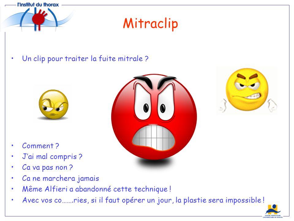 Mitraclip Un clip pour traiter la fuite mitrale .Comment .